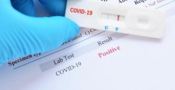 Словакия премахва карантината за влизащи в страната, които са ваксинирани или прекарали COVID-19